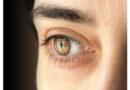 Semana Mundial del Glaucoma del 8 al 14 de marzo